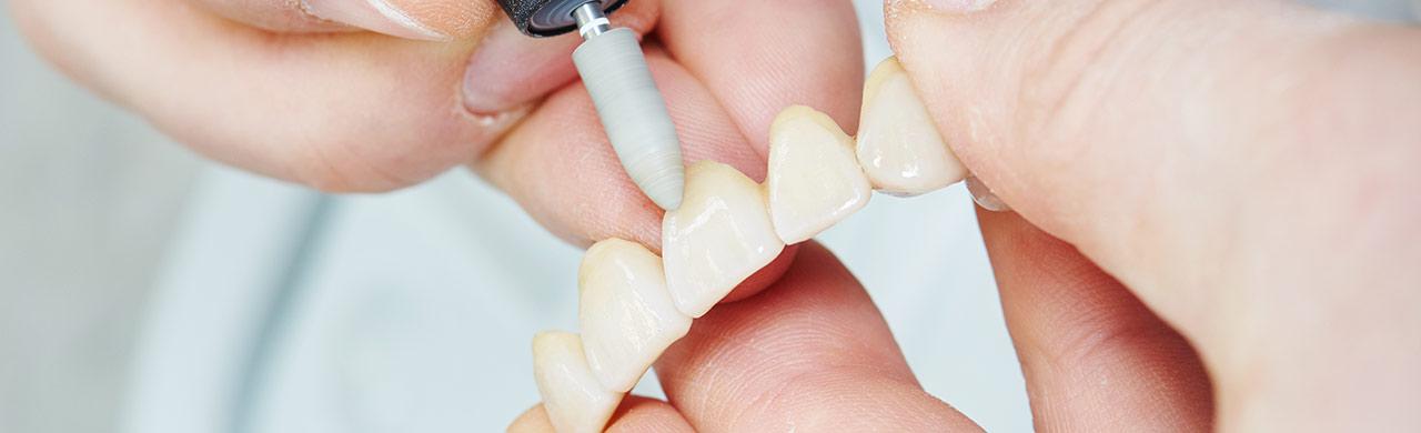 protesi fisse | Studio dentistico MIlano