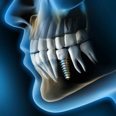 Implantologia | Studio zucchi milano